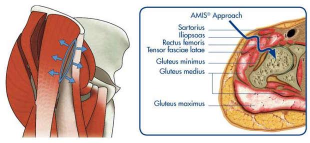 Αρθροπλαστική Ισχίου AMIS