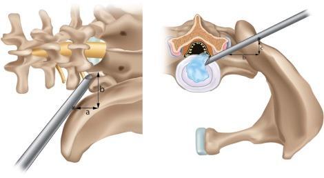 Διαδερμική Χειρουργική Σπονδυλικής Στήλης